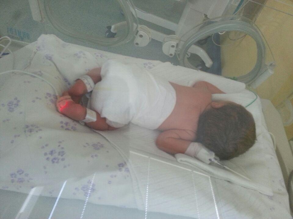 Mleko matki ma moc szczególnie dla wcześniaków. Dziecko w inkubatorze.